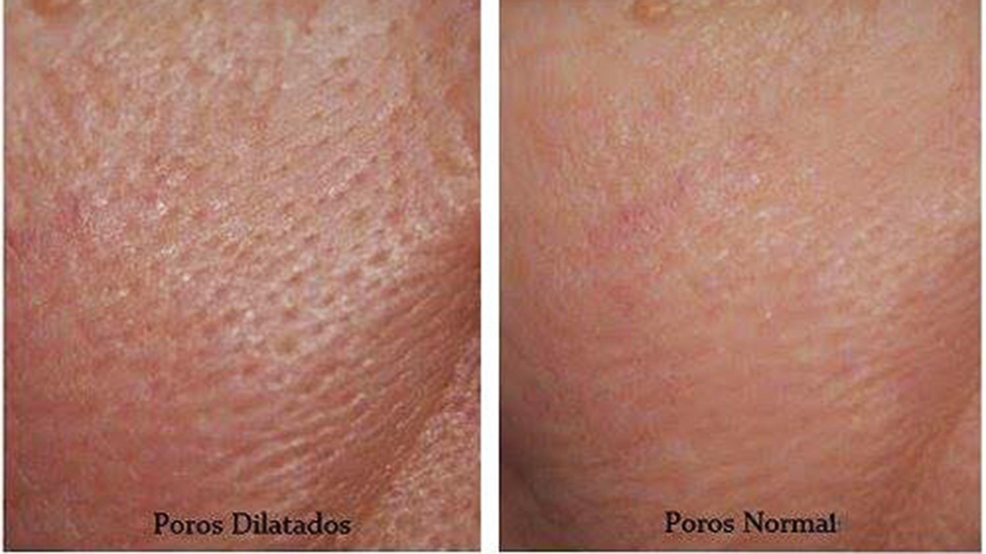 7 Consejos Para Cerrar Los Poros Fácilmente Con Ingredientes Naturales