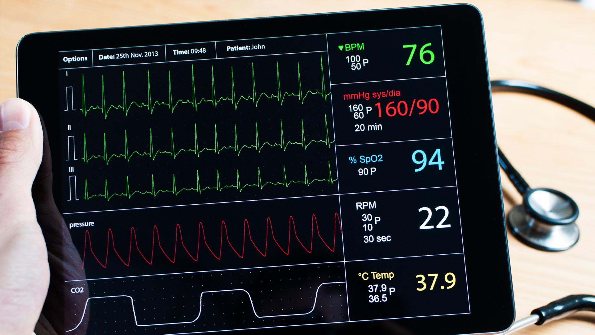 Puntaje de presión arterial normal