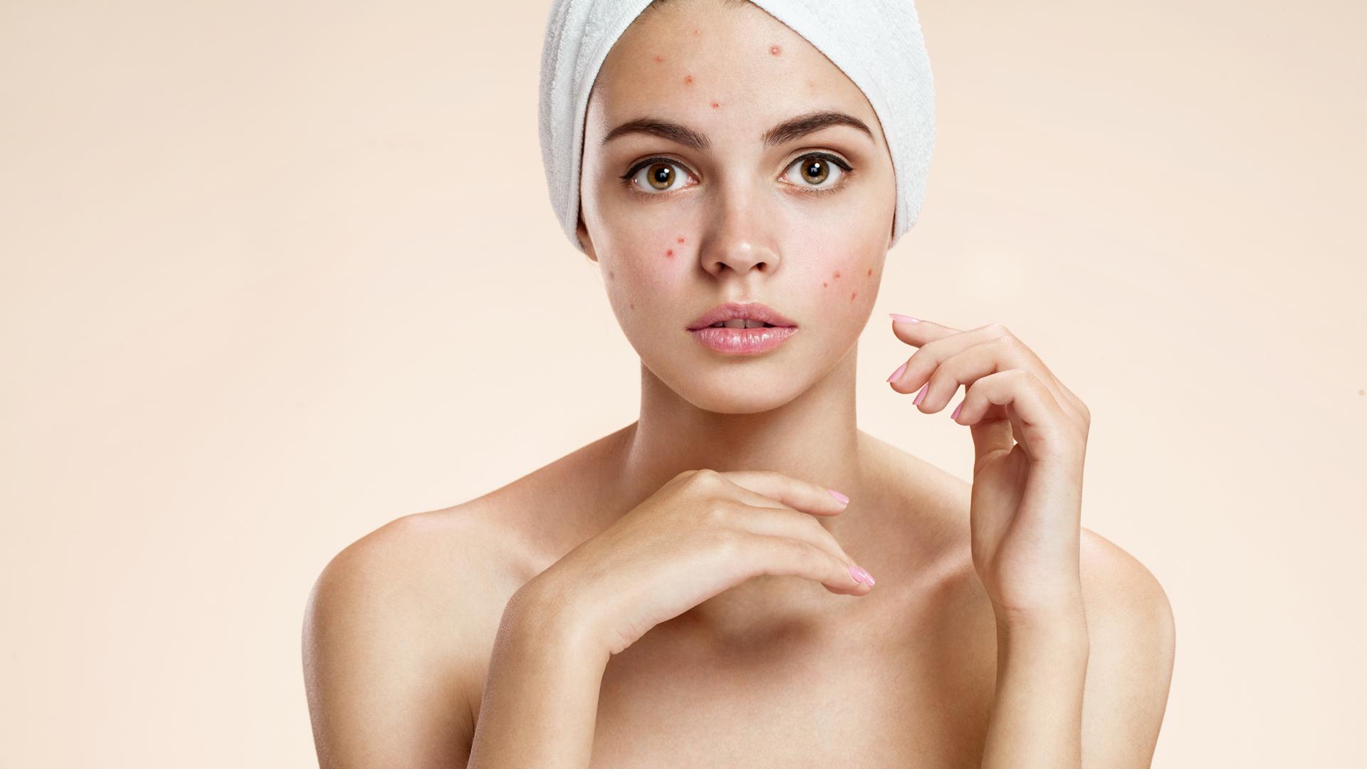 Really. Fingerprint shows on facial skin