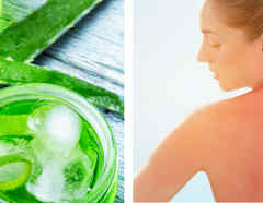 Remedios para aliviar quemaduras de sol