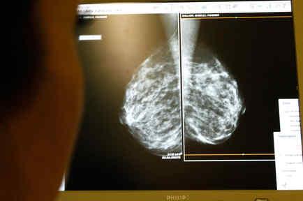Las calcificaciones en los senos no significan cáncer