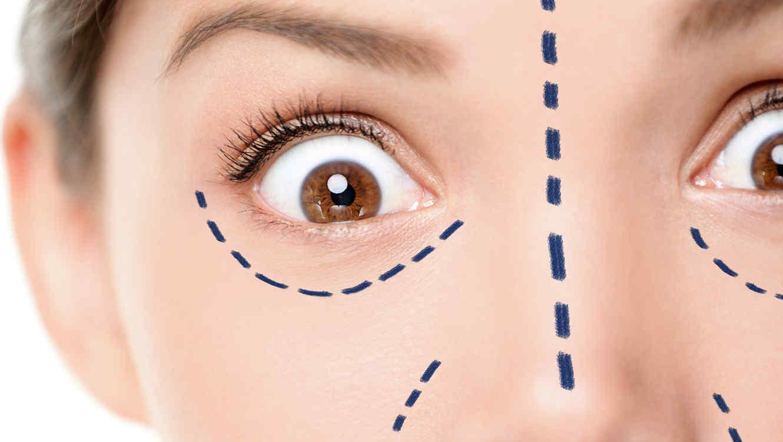 rostro de mujer en cirugia con marcas en su cara