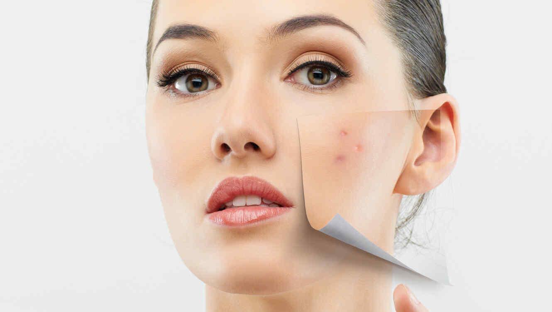 Mujer con manchas de acné