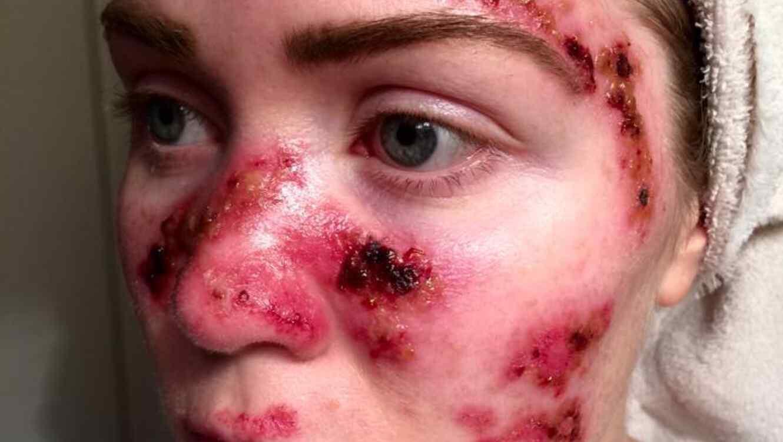 Tawny Willoughby muestra las lesiones del cáncer de piel