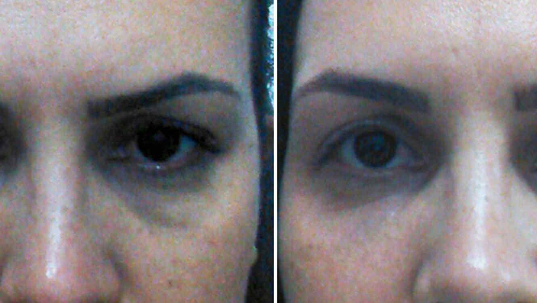 Remedios caseros para las reducir las ojeras con Cassia Cardoso ...