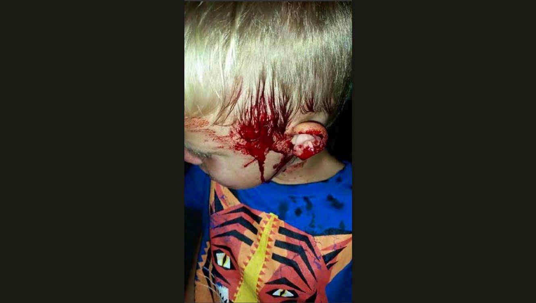 Serpiente pintón ataca niño en Australia