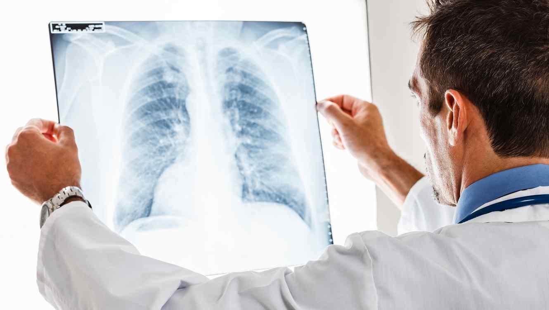 Médico revisando radiografías de pulmón