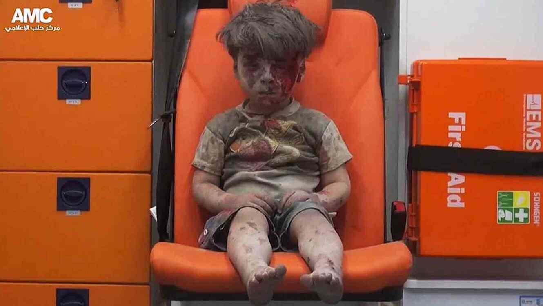 Niño herido en ambulancia, Siria