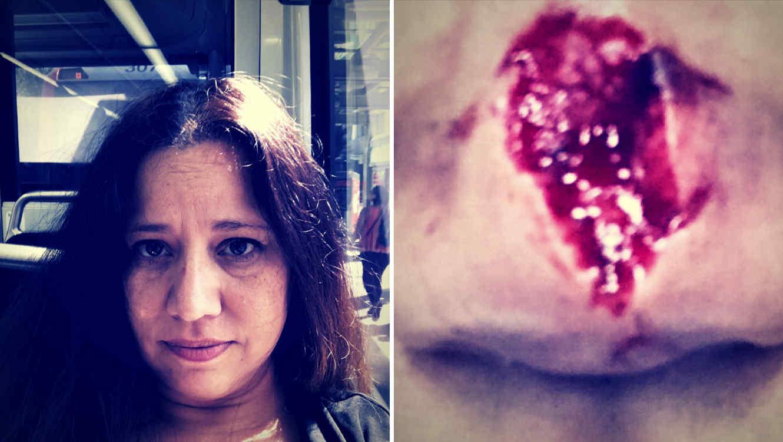 Una mujer le comió la nariz a su amiga