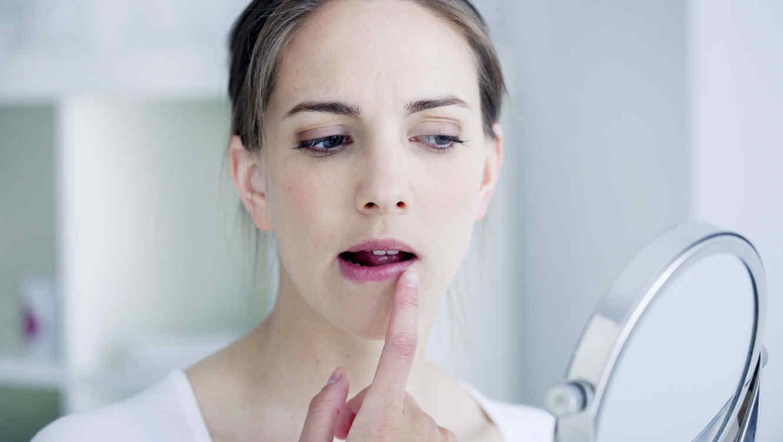 Dieta para herpes labial
