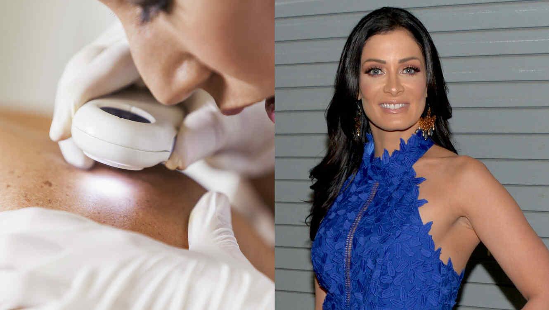 Cómo evitar el cáncer de piel