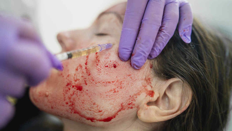 """Ligan """"facial vampiro"""" a contagio de VIH"""
