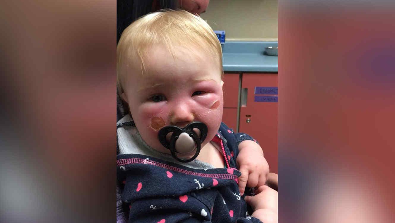 Bebé con quemadura química
