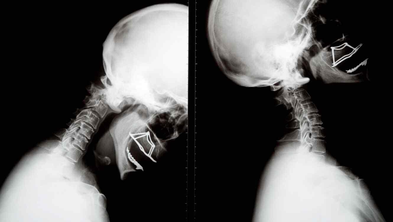 X-Ray of human skull