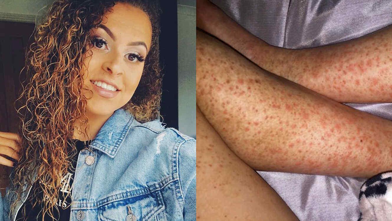 Rihannon Douglas y piernas con erupción en la piel