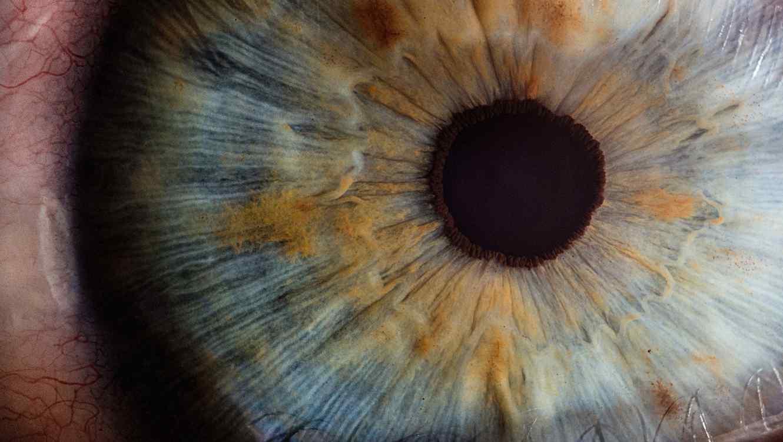 Queda ciego por bañarse con lentes de contacto