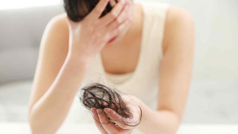 Mujer con alopecia