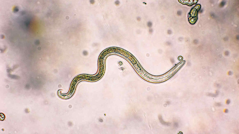 parásito de gusano más común en los EE. UU.