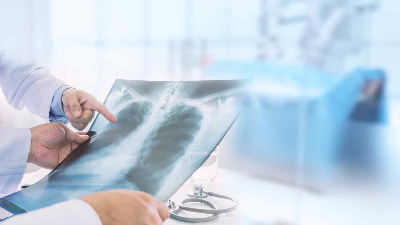 Médicos con radiografía