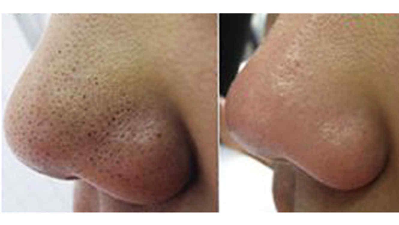Los chichones después del acné