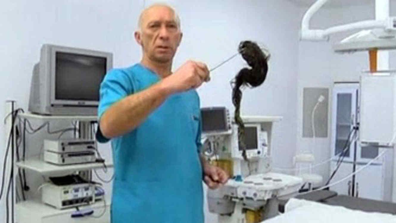 Médicos extraen una bola de pelo del estómago de una niña