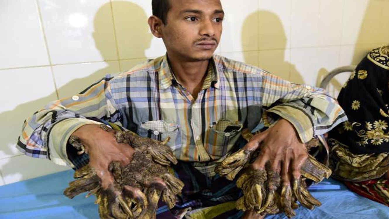 Abul Bajandar es el hombre árbol