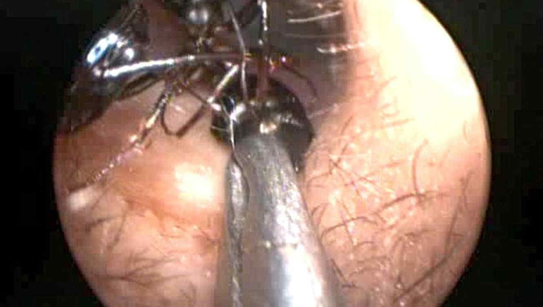 Extraen 1.000 hormigas del oído de una niña de 12 años