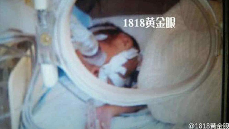Bebé declarao muerto llora antes de ser incinerado