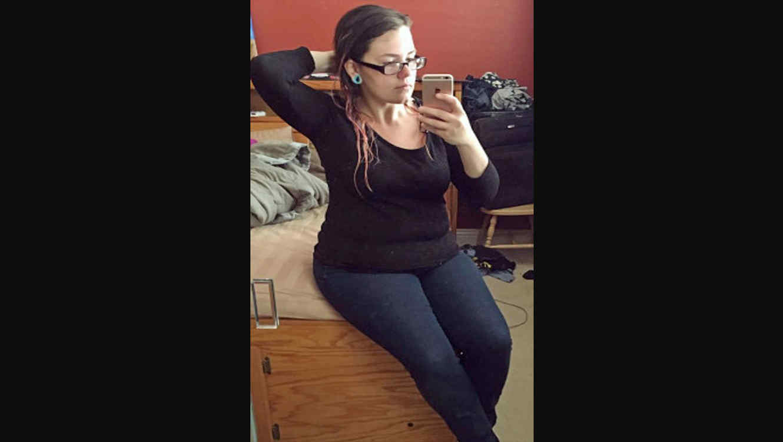 Así quedó la piel de esta mujer después de perder 63 Kilos (FOTOS ...