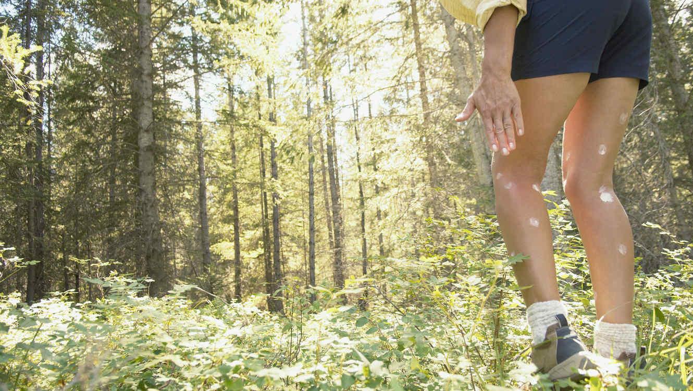 Mujer caminando por el bosque con picaduras de mosquito