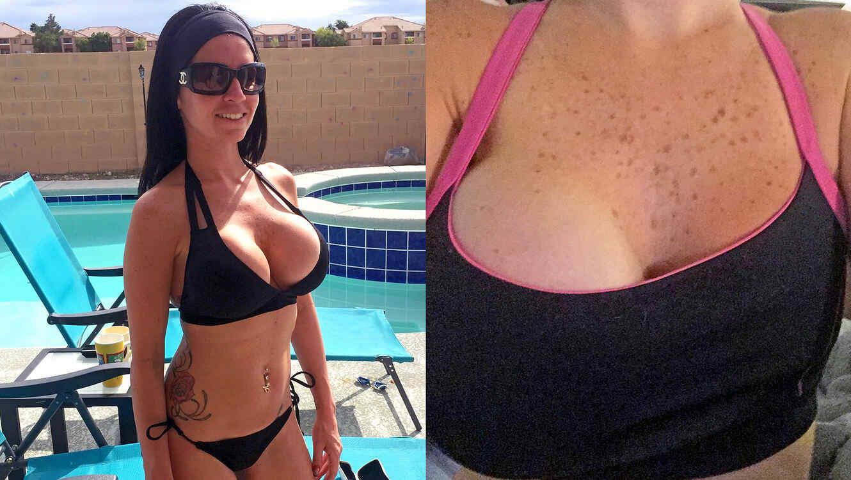 Mujer queda con seno gigante tras infección por un piercing