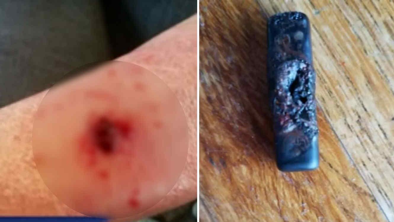 Mano de una mujer quemada y Fitbit quemado