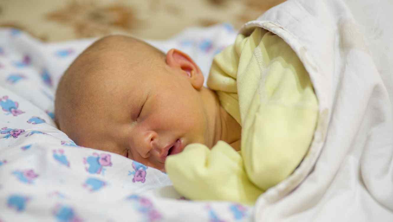 Bebé recién nacido con ictericia