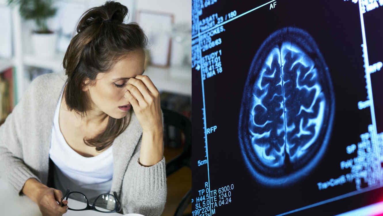 Síntomas de tumor cerebral