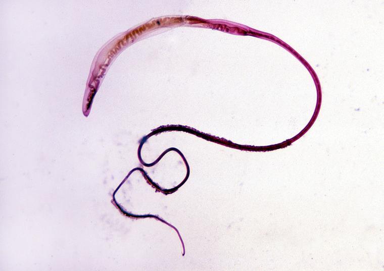 Trichocephalus