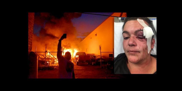 Una fotografía tomada por Linda Tirado durante las protestas de Minneapolis, a la izquierda, y un retrato de Tirado en el hospital después de perder su ojo.