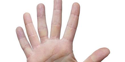 Third thumb seis dedos