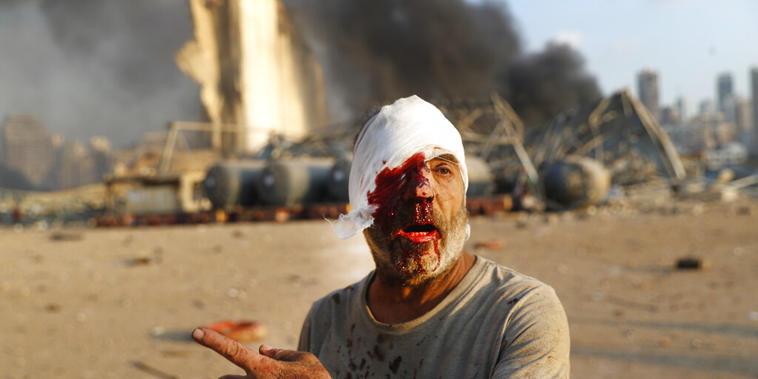 Un hombre herido caminaba por el puerto de Beirut luego de la explosión sucedida el 4 de julio de 2020.