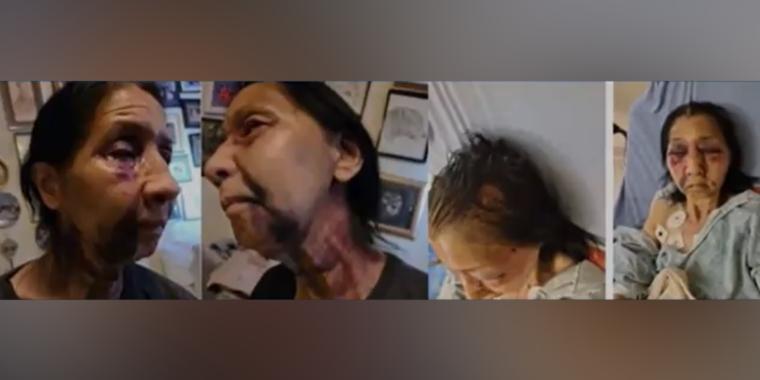 La latina de 70 años fue atacada por una mujer negra que fue detenida por la autoridades de Los Ángeles.