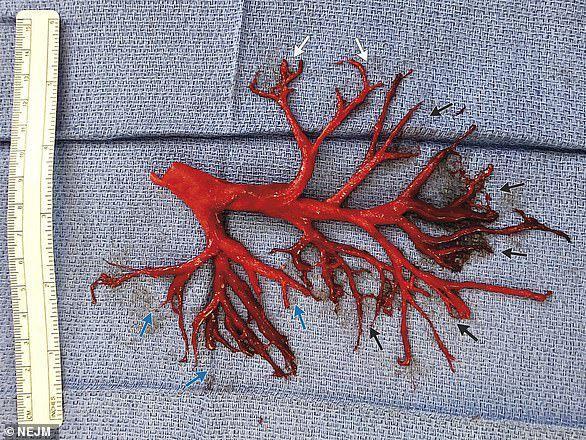 Encuentran coágulo gigante en pulmón de hombre de California