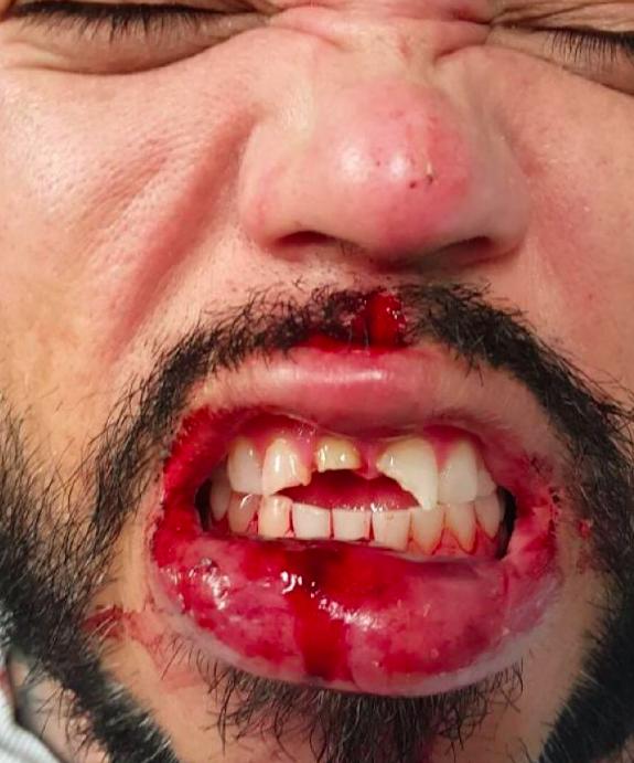 AB Quintanilla con la boca sangrando