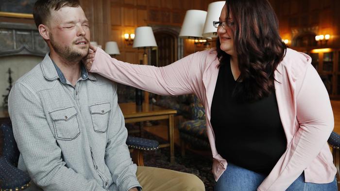 Lilly Ross toca el rostro de Andy Sandness, a quien le trasplantaron el rostro de su marido, el 27 de octubre del 2017 en la Clínica Mayo de Rochester, Minnesota.