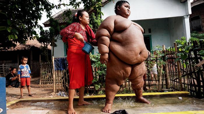 Arya Permana cuando era el niño más gordo del mundo
