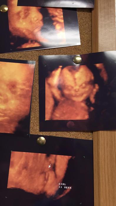 Ultrasound de bebé en 4D parece un demonio
