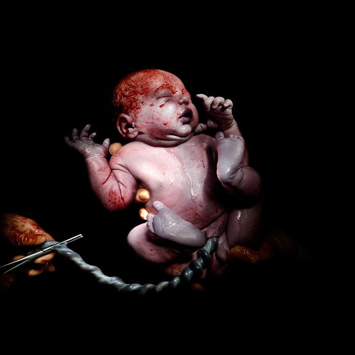 Bebé recién nacido por cesárea