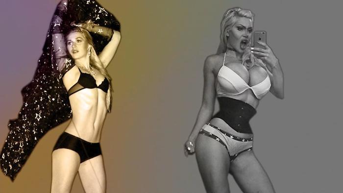 Pixie Fox se quitó 6 costillas para tener una cintura diminuta