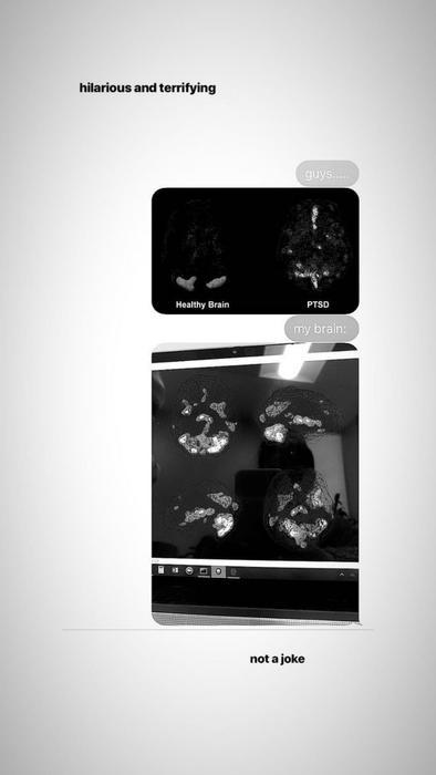 Imágenes del cerebro de Ariana Grande