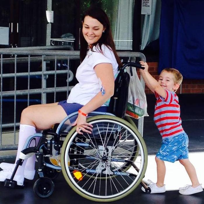 Jo Gilchrist quedó en silla de ruedas después de contraer una infección de estafilococo de una brocha de maquillaje