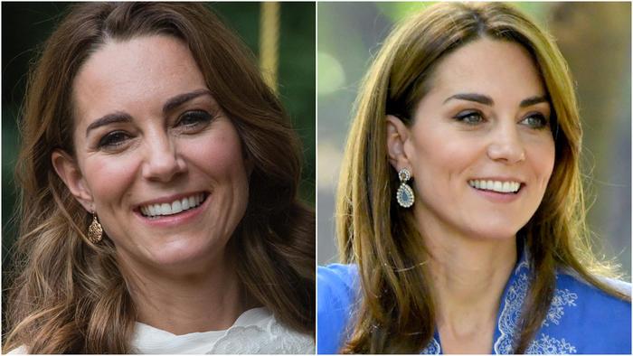 Kate Middleton antes y después del baby bótox