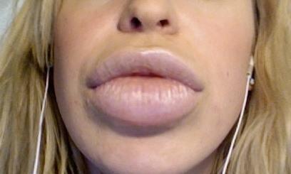 labios inyectados con silicona